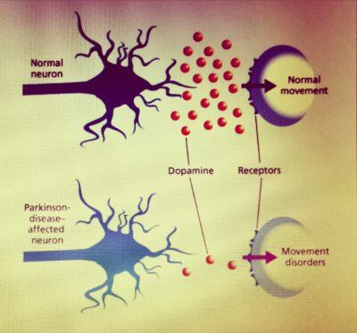 Parkinson, boala genetica?
