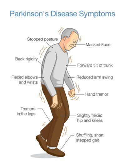 Boala Parkinson avansată