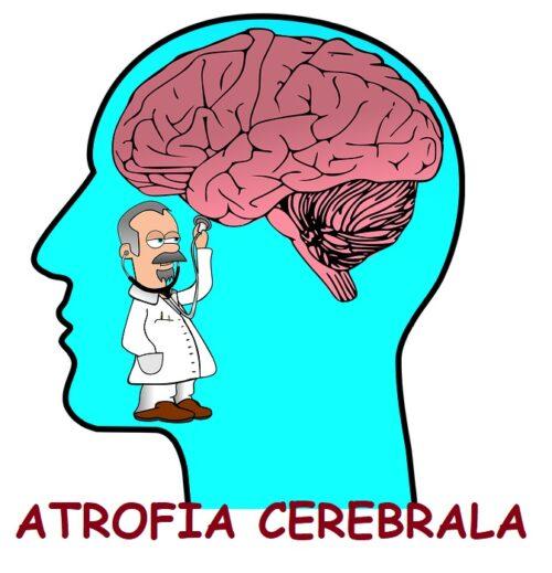 Atrofia cerebrala. Partea I