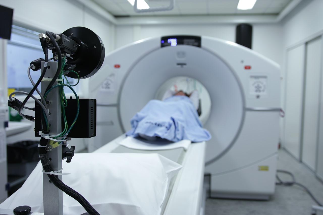 Un nou medicament ar putea facilita diagnosticarea sclerozei multiple în stadii incipiente